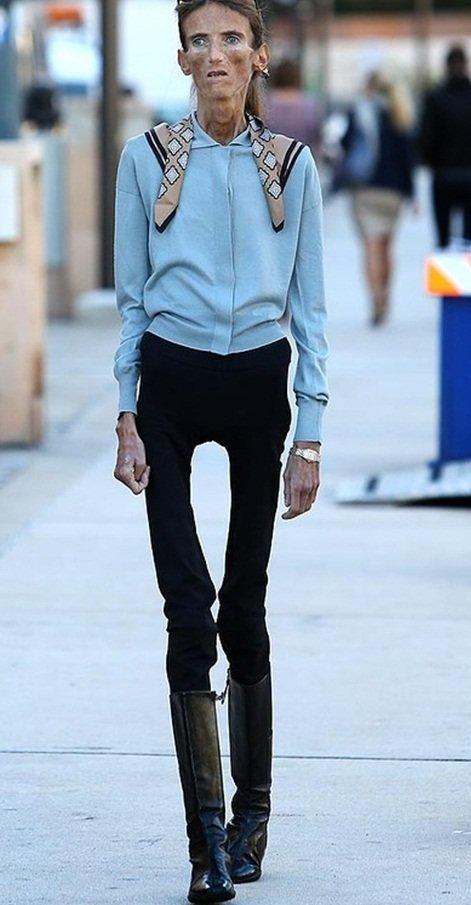 Mulher mais magra do mundo russa